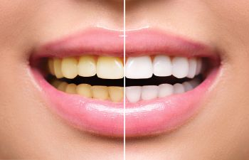 Teeth Whitening Before and After Slide Philadelphia PA