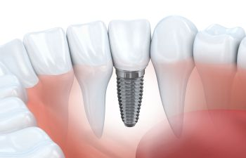 Implant Model Philadelphia PA